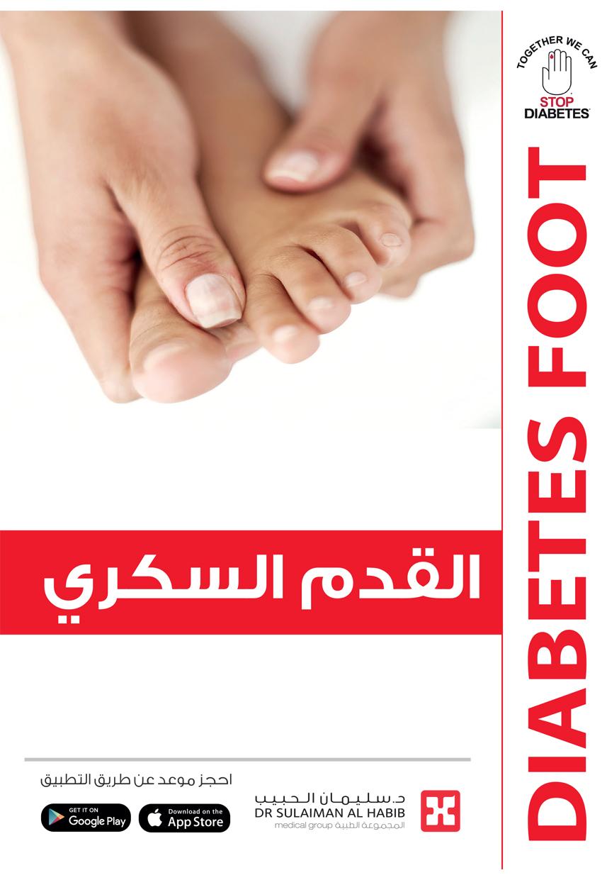 Diabets Foot